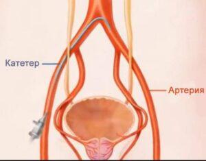 Простата что это такое и как лечить